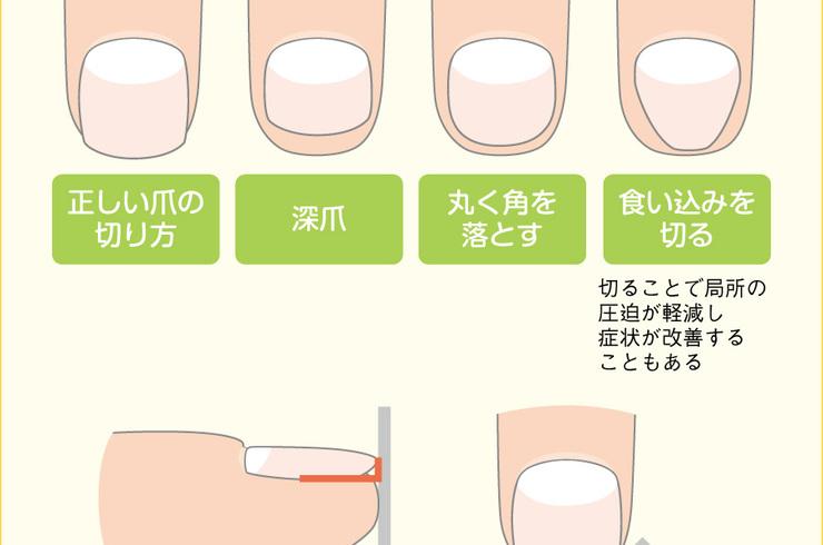 「爪 足 切り方」の画像検索結果